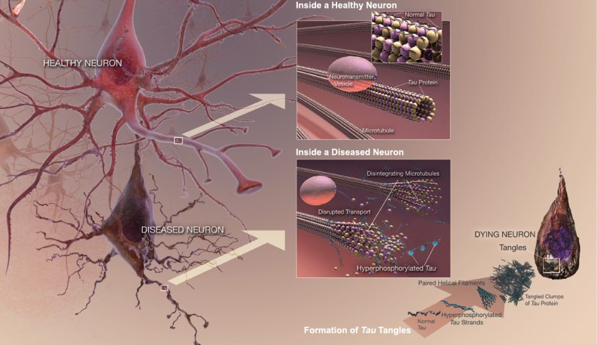 dying neuron due to neurofibrillary tangles