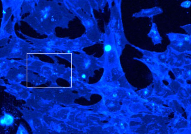 APOE4 astrocytes with altered lipid accumulation