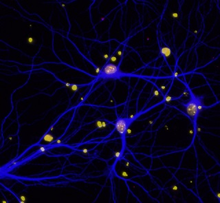 BRCA1 in neurons 320