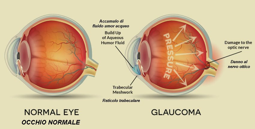 Eye with glaucoma with translation