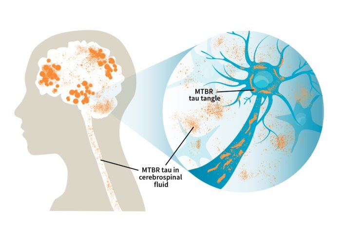 MTBR tau in cerebrospinal fluid