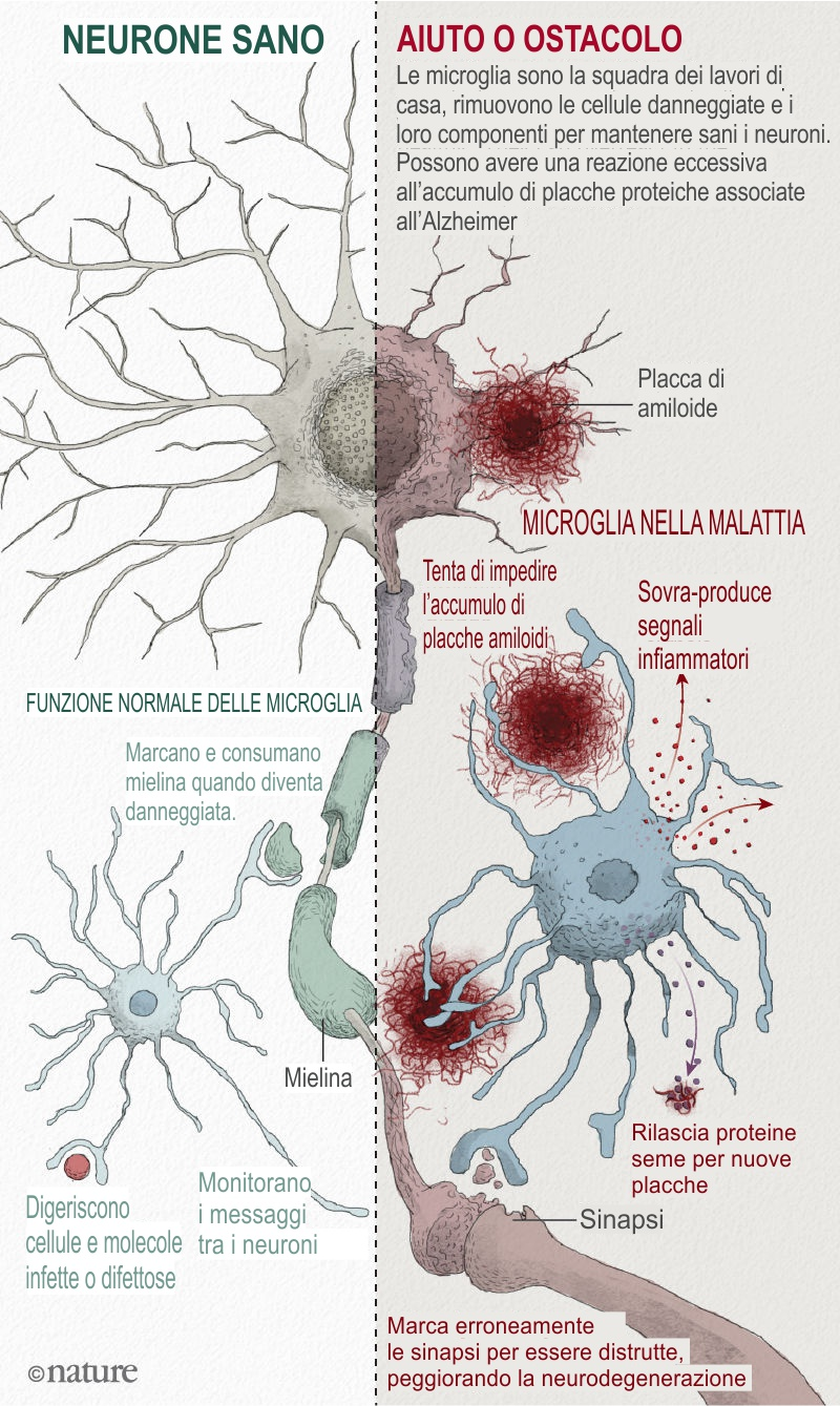 Microglia function healthy vs diseased