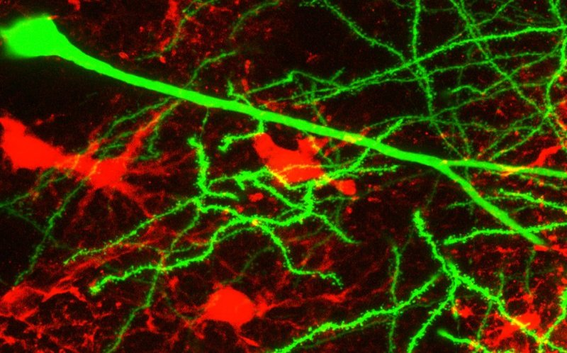 Neurons-and-astrocytes.jpg