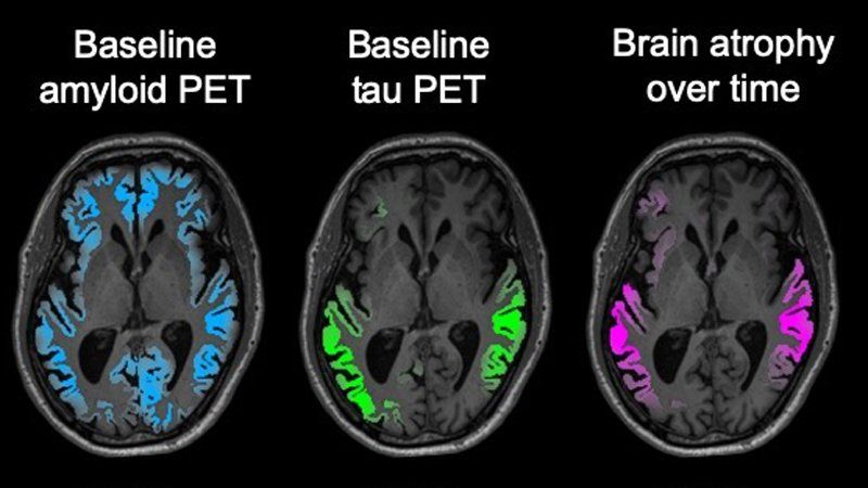 amyloid vs tau vs atrophy 3pt mri figure