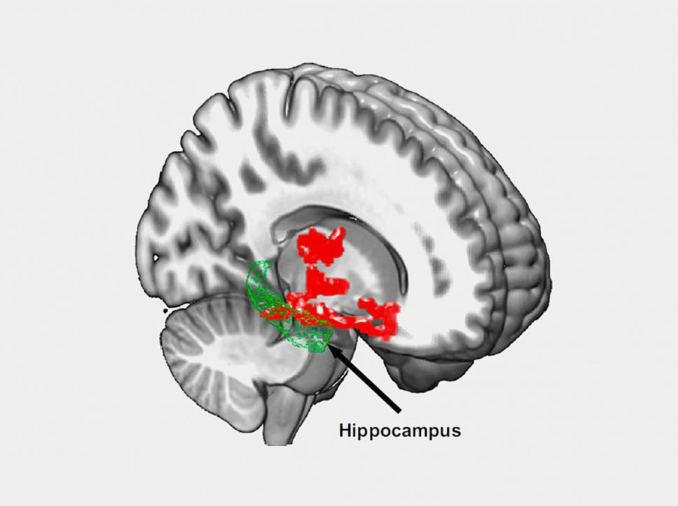 beta amyloid brain regions