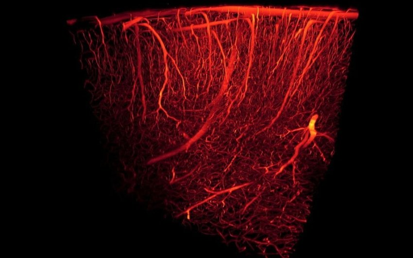 blood vessels 3d rendering
