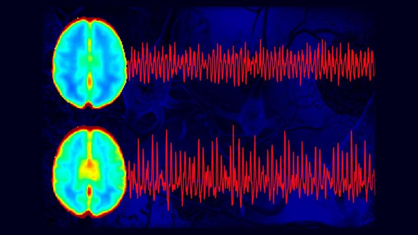 brain pulses differently in alzheimer