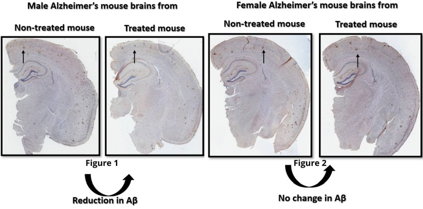 effects of sex specific difference of alzheimer
