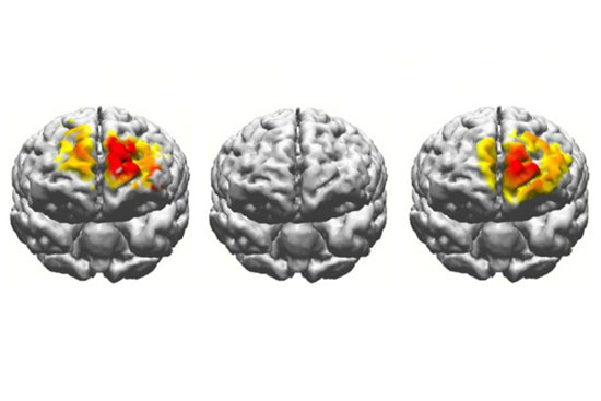 electrostimulation brain comparison