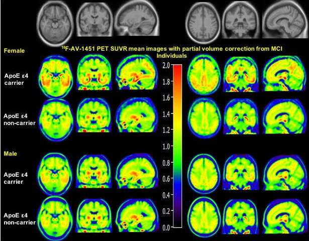 female male brain scans apoe4
