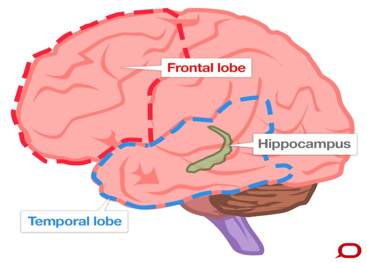 frontal temporal lobes and hippocampus