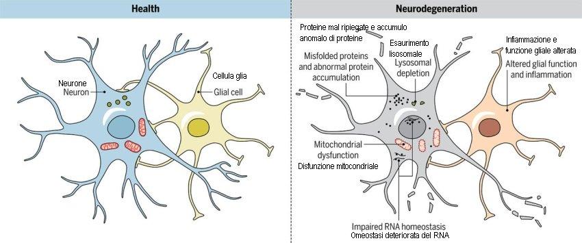 Trattare le neurodegenerazioni puntando a più proteine patologiche, non solo una