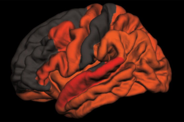 brain areas with higher levels of toxic tau