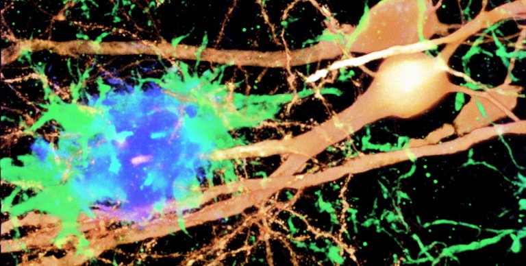microglia activated in response to amyloid and damage neuron