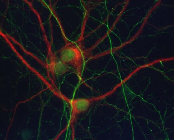 neuronal cell culture with dendritic marker in red and neurofilament axon in green