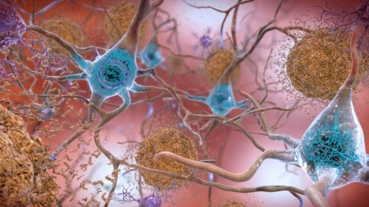 neurons with amyloid and tau