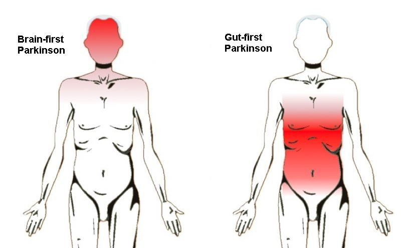 parkinson from brain or gut
