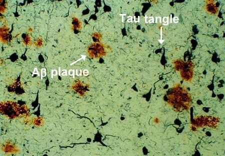 amyloid plaque and neurofibrillary tangles