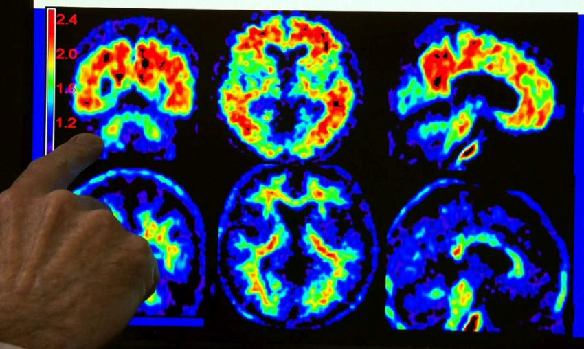 scans of brain with and without alzheimer