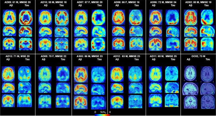 variety of tau and amyloid imaging